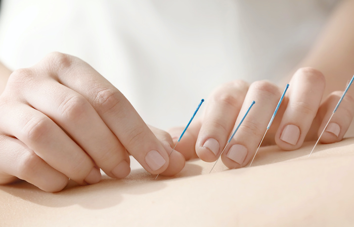 acupuncture treatment infertility in singapore